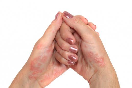 Onderzoek - Homeopathie en psoriasis