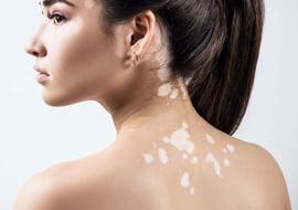 Homeopathie met succes toegepast bij vitiligo