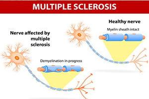 Lezersvraag: Wat is er met homeopathie te doen aan Multiple Sclerose (MS)?