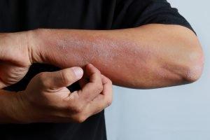 Homeopathie bij jeukende huiduitslag